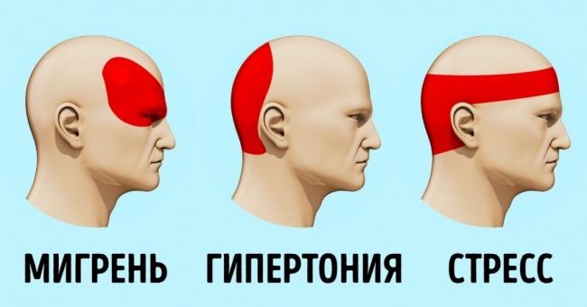 мигрень гипертония стресс