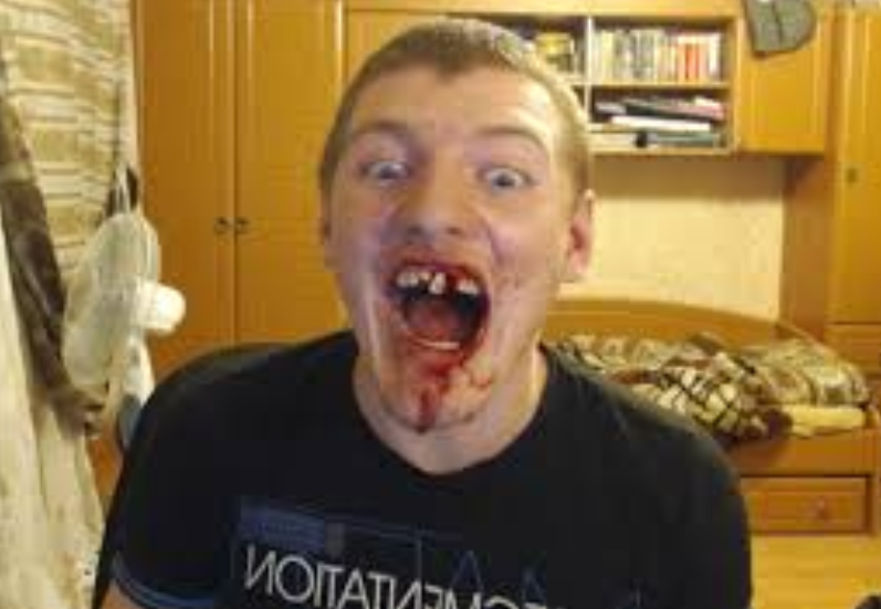 Блогер Вжлинк Vjlink выбитые зубы