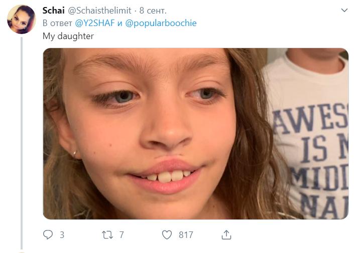 Девушки меняют форму губ с помощью суперклея