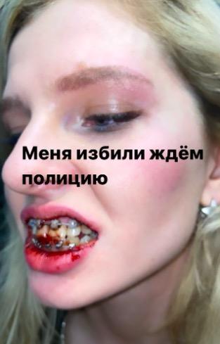 меллстрой избивает девушку