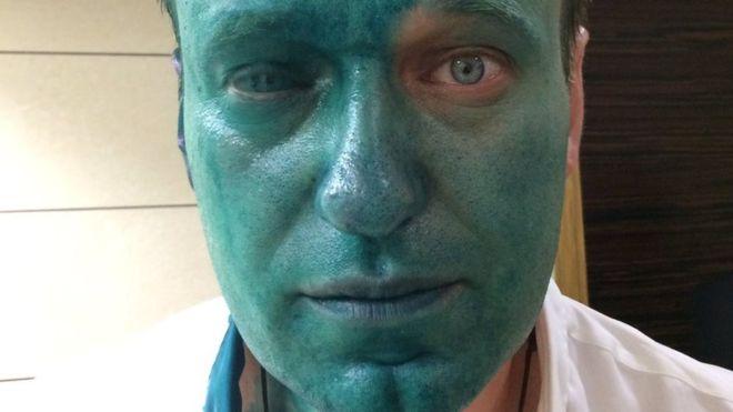 навальный глаз